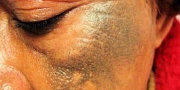 Depigmentimi i lëkurës