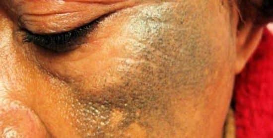 Dépigmentation de la peau
