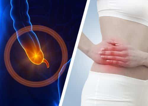 L'appendicite: une maladie de civilisation