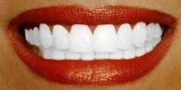 Zbardhini dhëmbët